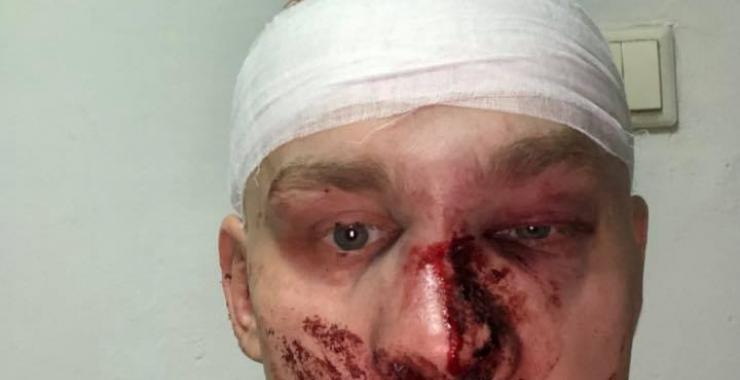 В Харькове избили экс-главу «Східного корпуса» Олега Ширяева